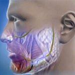 Методы лечения гиперкинеза